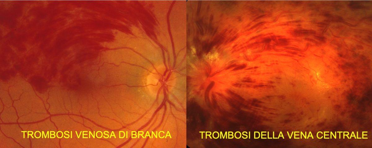 Trombosi venose retiniche